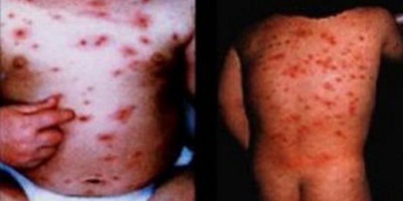 大人 症状 水疱瘡